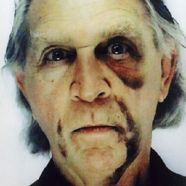 Jimmie Durham. Self-portrait with black eye and bruises, 2006. Cortesía de la colección Fundación ARCO