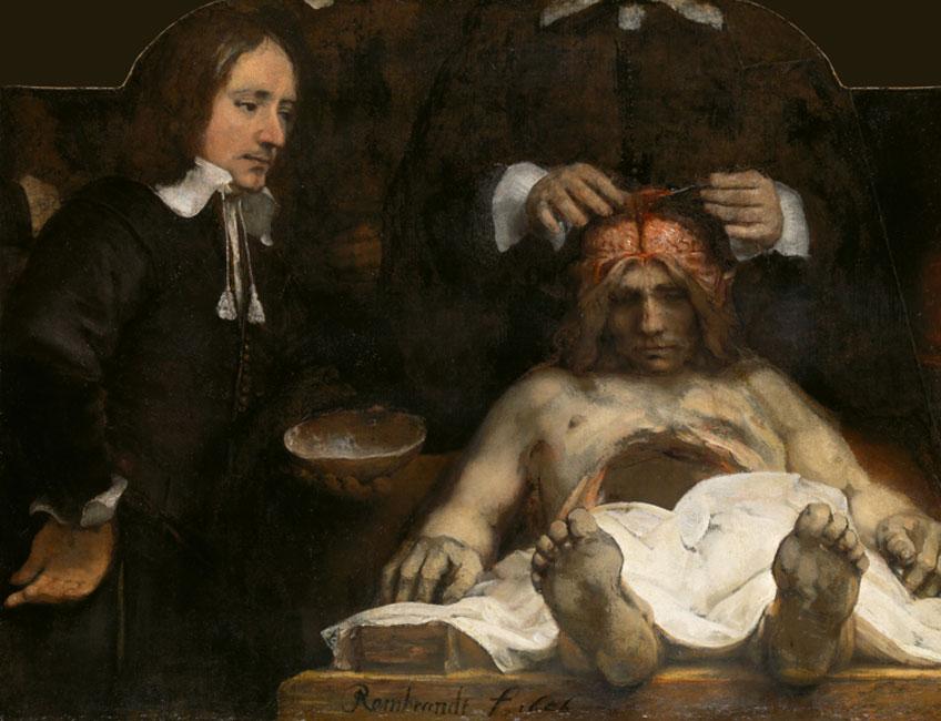 Rembrandt. La lección de anatomía del doctor Jan Deijman, 1656. Amsterdam Museum