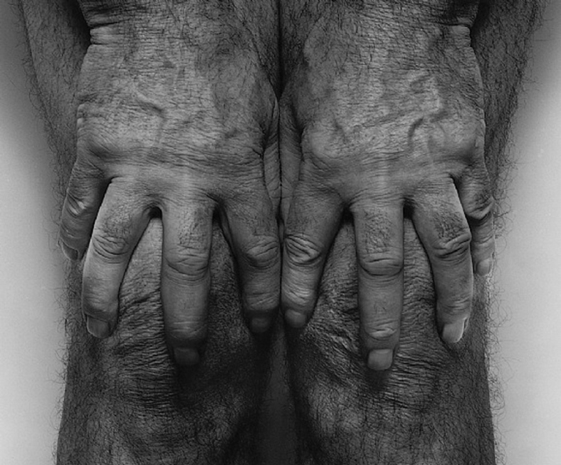John Coplans. Self-Portrait (Hands Spread on Knees), 1985. Tate